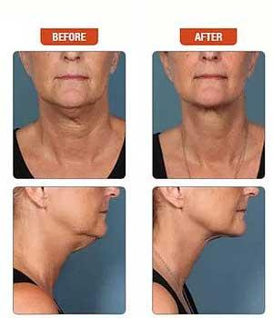 kybella-double-chin-procedure