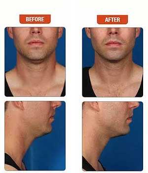kybella-double-chin-surgery